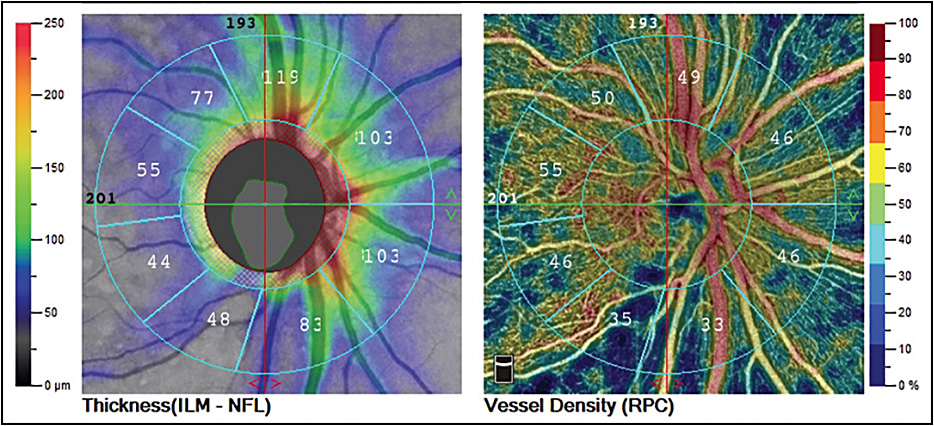 AngioVue AngioAnalytics image showing disc retinal nerve fiber layer thickness. Image courtesy Optovue.