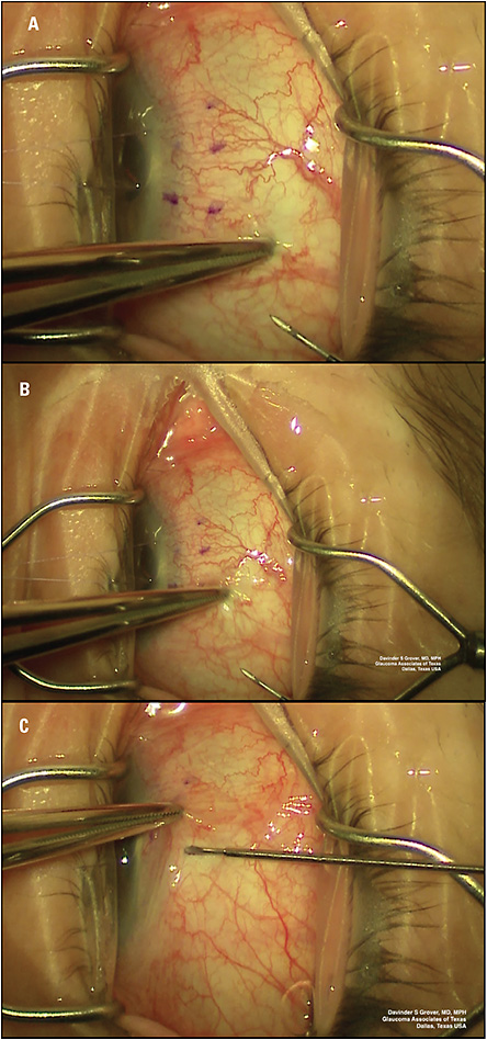Figure 2. Intraoperative photograph demonstrating the movement and dragging of the superior temporal conjunctiva in the inferior nasal direction to ensure the conjunctival button hole is not located in the position of the Xen implant. Images A, B, and C show the movement of the forceps in chronological order.