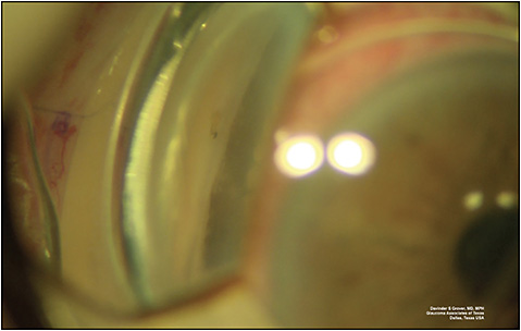Figure 4. Intraoperative gonioscopic photograph demonstrating the ideal positioning of the Xen implant, anterior to the trabecular meshwork. One can appreciate a small air bubble at the tip of the implant.