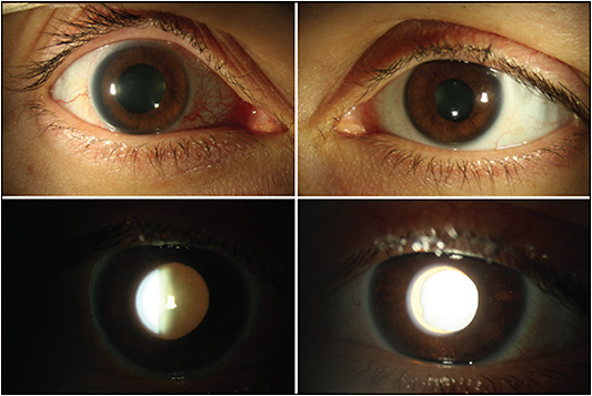 Figure 1. Slit-lamp examination demonstrates a mydriatic right pupil. On retroillumination, transillumination defects were more apparent in the left eye due to the presence of a cataract in the right eye.
