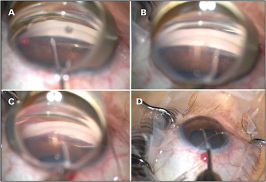 Figure 3. A goniotomy was performed on the nasal trabecular meshwork. Note the dense pigmentation of the angle (A). A catheter was advanced through Schlemm's canal using microforceps (B). The distal tip emerged through the goniotomy and was grasped (C). The proximal portion was pulled, and a circumferential goniotomy was completed (D).