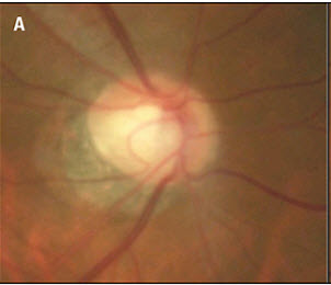 Corneal Hysteresis in Glaucoma Management