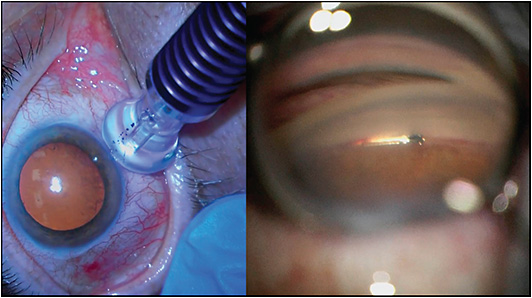 Combining Multiple Minimally Invasive Glaucoma Surgeries